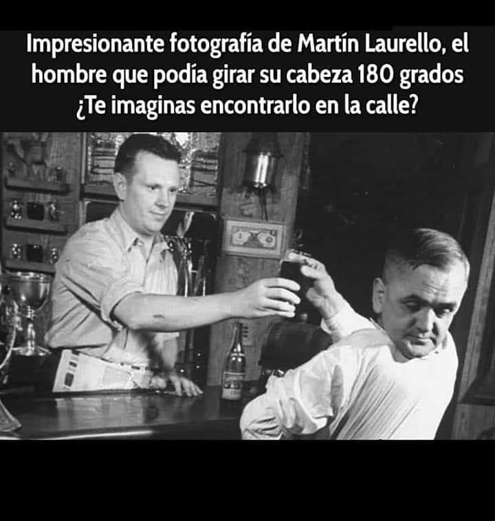 Impresionante fotografía de Martín Laurello, el hombre que podía girar su cabeza 180 grados.  ¿Te imaginas encontrarlo en la calle?