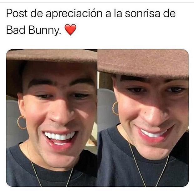 Post de apreciación a la sonrisa de Bad Bunny.