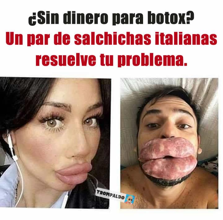 ¿Sin dinero para botox?  Un par de salchichas italianas resuelve tu problema.